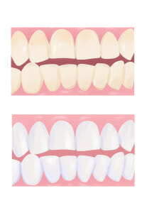 Downey Teeth Whitening