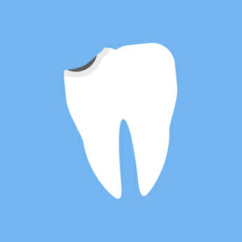 Why Does Tooth Decay Happen?