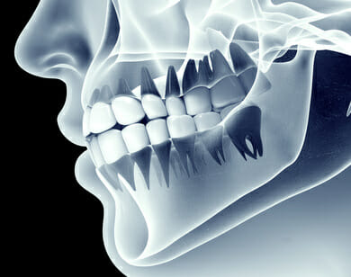 What Are The Benefits Of Laser-Guided Dentistry?
