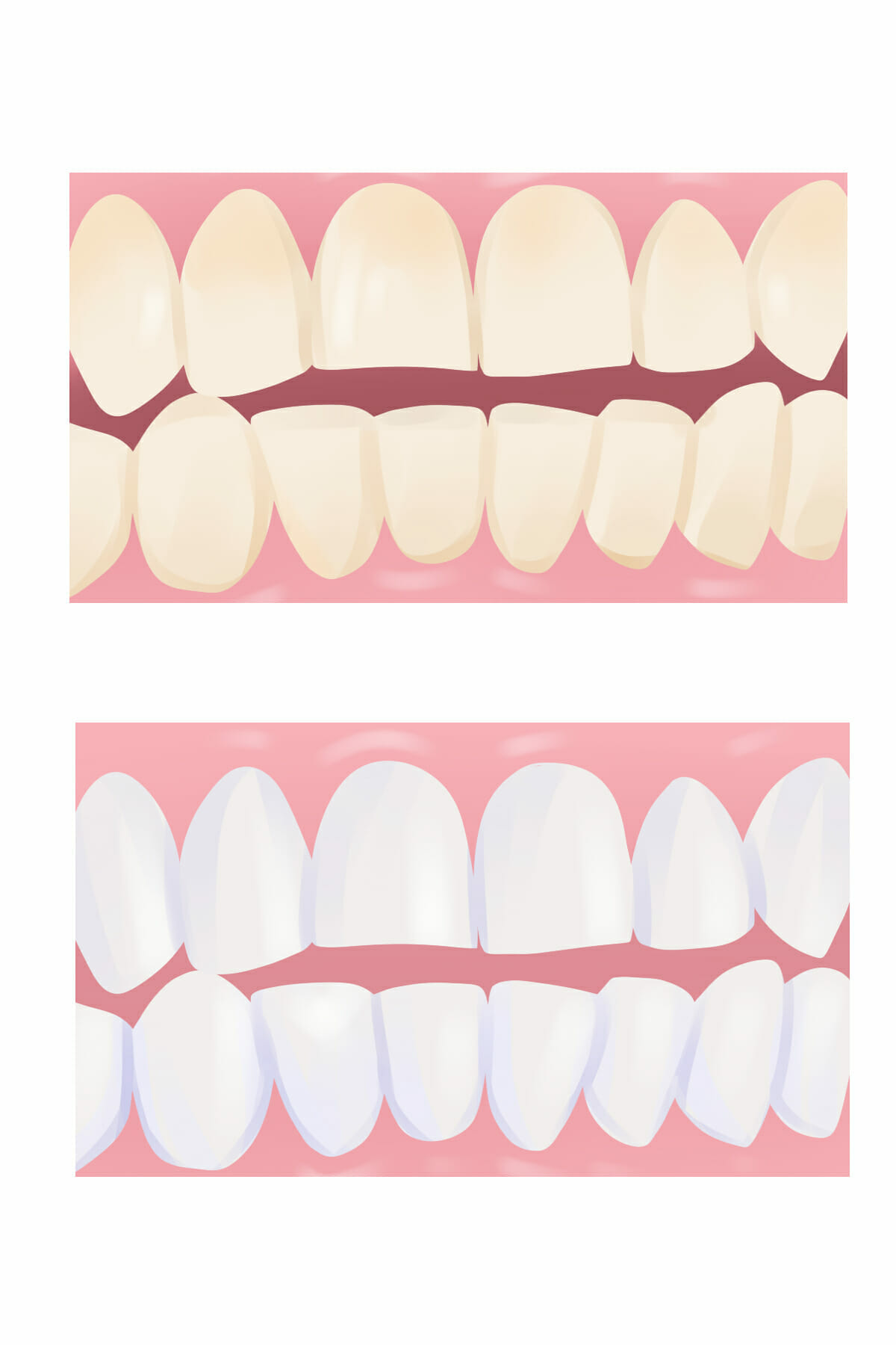 Does Whitening Your Teeth Actually Work?