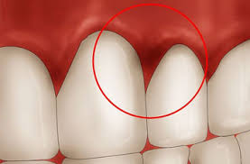 Why are my gums inflamed?