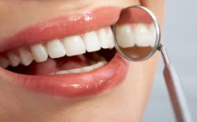 Can Any Dentist Whiten Your Teeth in Downey, ca?